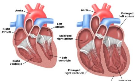 Cardiomiopatia dilatativa del cane: sintomi e prognosi!