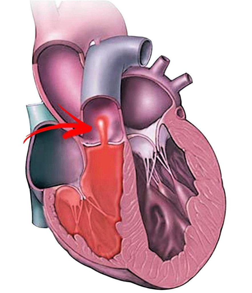 disegno della stenosi polmonare