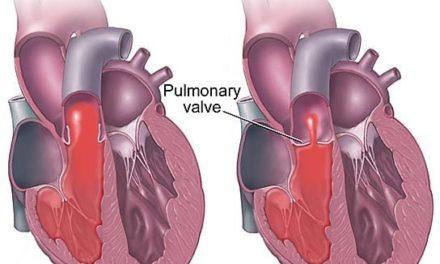 Stenosi polmonare nel cane: guarire è possibile!