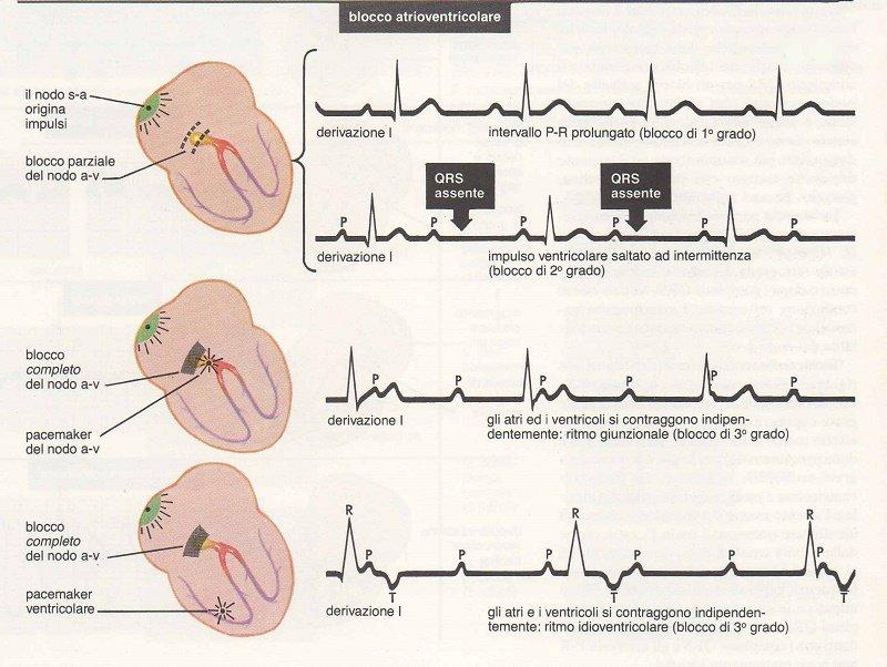 aritmie in cui può servire il pacemaker