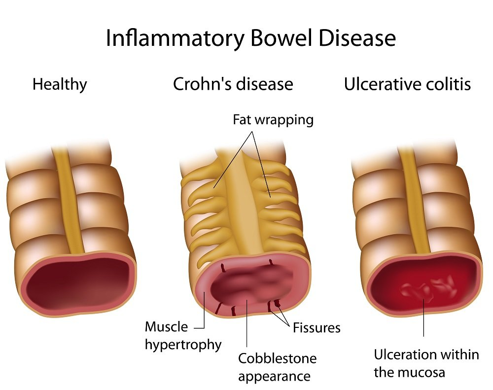 IBD alterazioni mucosali