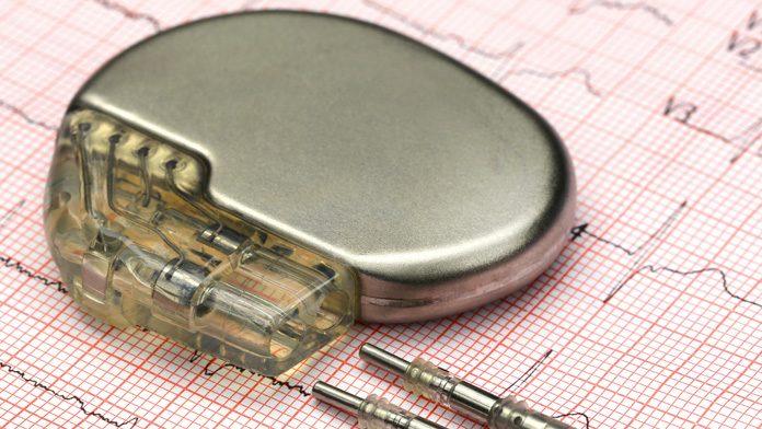batteria del pacemaker che va impiantata sottocute.