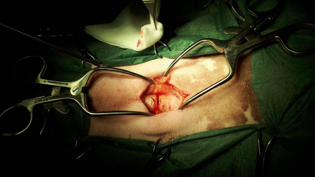 accesso per tracheostomia