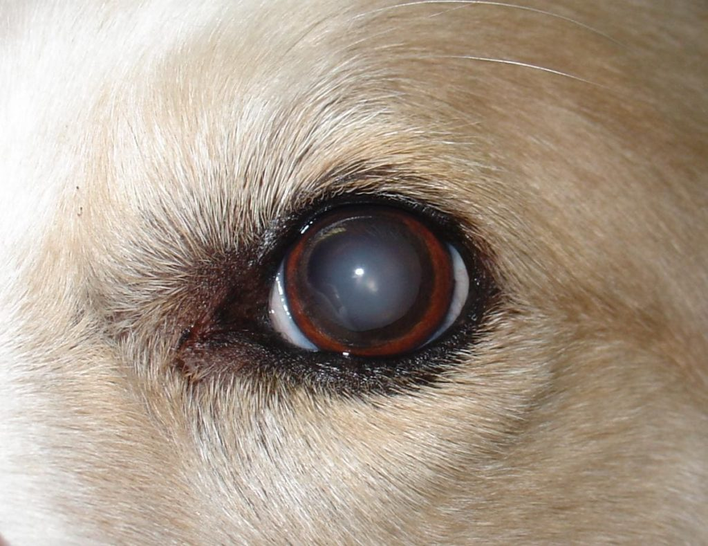 la cataratta porta a cecità
