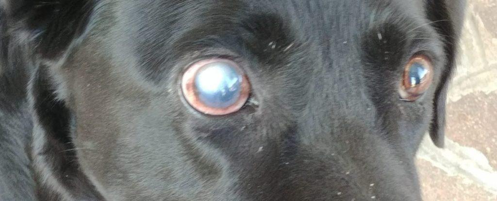 Esempio di glaucoma causato da ipertensione