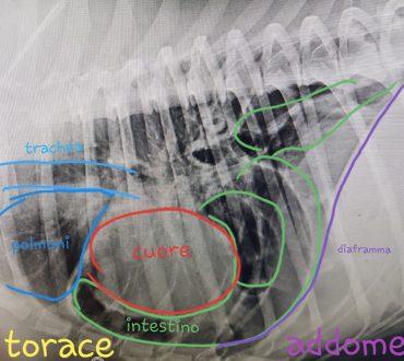 ernia diaframmatica