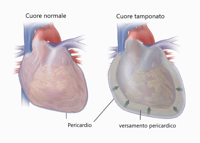 Tamponamento cardiaco nel cane e nel gatto!
